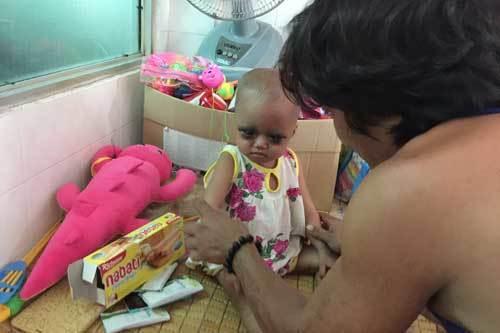 Rưng rưng bé 1 tuổi ung thư với hai mắt sưng tím bầm