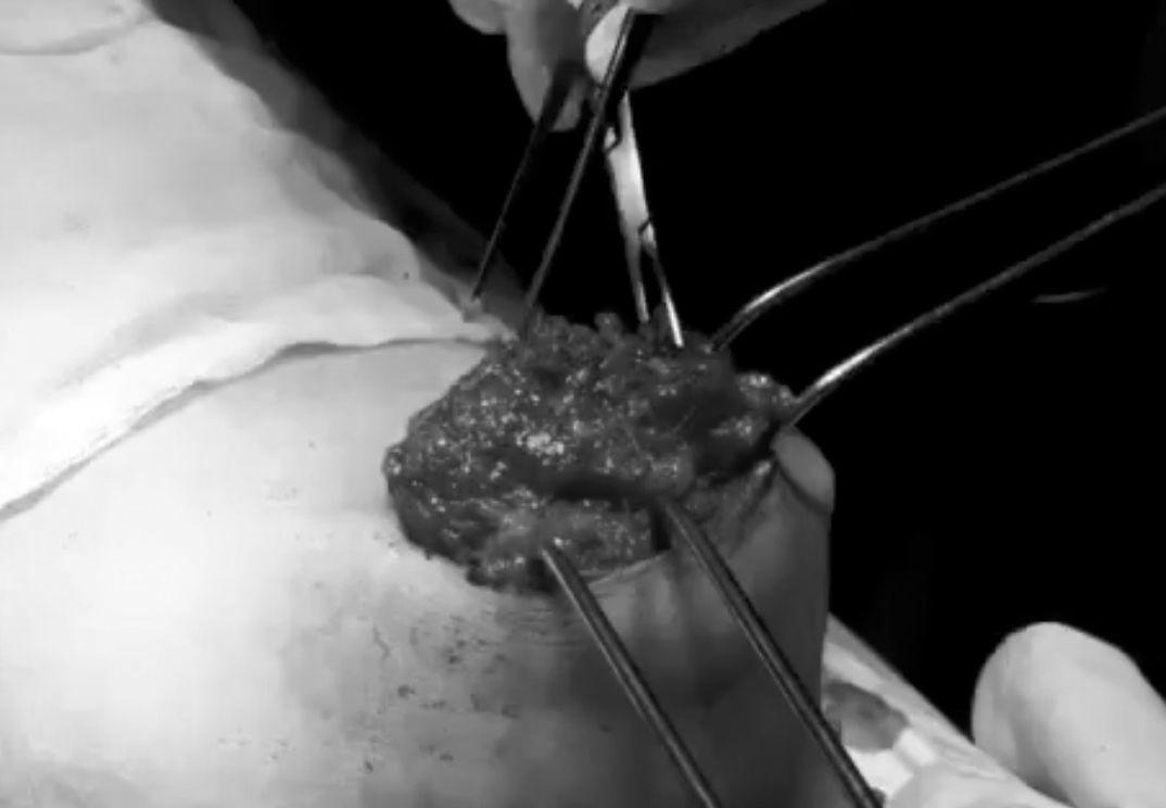 Bà nội trợ đau đớn cắt bỏ đôi gò bồng đảo do mê nâng ngực
