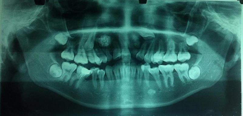 14 tuổi vẫn còn răng sữa, đi khám phát hiện u răng