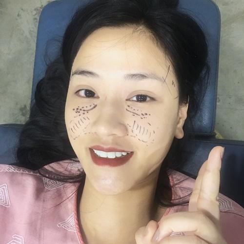 Maya gây xôn xao với khuôn mặt vừa phẫu thuật thẩm mỹ