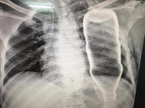 Hi hữu: Bệnh nhân bị cả chai thủy tinh chui vào lồng ngực
