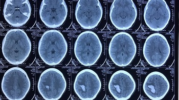 Đau đầu từng cơn, thiếu nữ bất ngờ phát hiện dị dạng mạch não
