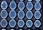 Đau đầu nhiều tháng, phát hiện khối u to bằng quả trứng trong não - ảnh 5