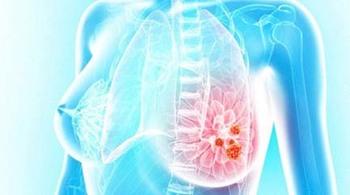 Nữ sinh 19 tuổi mắc bệnh ung thư vú vì thói quen hầu như ai cũng làm