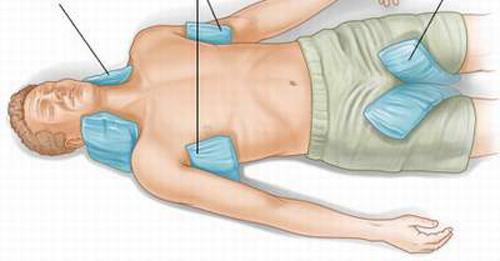 Cách sơ cứu người bị sốc nhiệt do nắng nóng