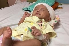 Xót xa bé trai não úng thủy đang mất dần sự sống
