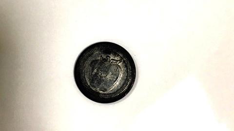 Gắp đồng xu trong dạ dày bé 5 tuổi