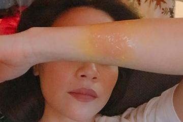 Hồ Ngọc Hà cầu cứu vì bị bỏng tay khi quay MV