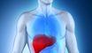Xơ gan có thể làm tăng nguy cơ đột quỵ
