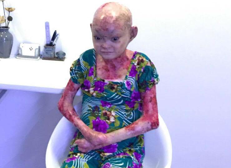 Cô gái mang hình hài quái nhân khi mắc bệnh lở loét khắp cơ thể