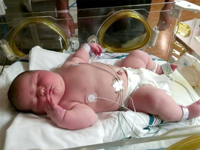 Bé sơ sinh khổng lồ ra đời ở Mỹ