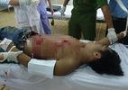 Thanh niên cầm 4 con dao chống trả công an rồi tự đâm mình