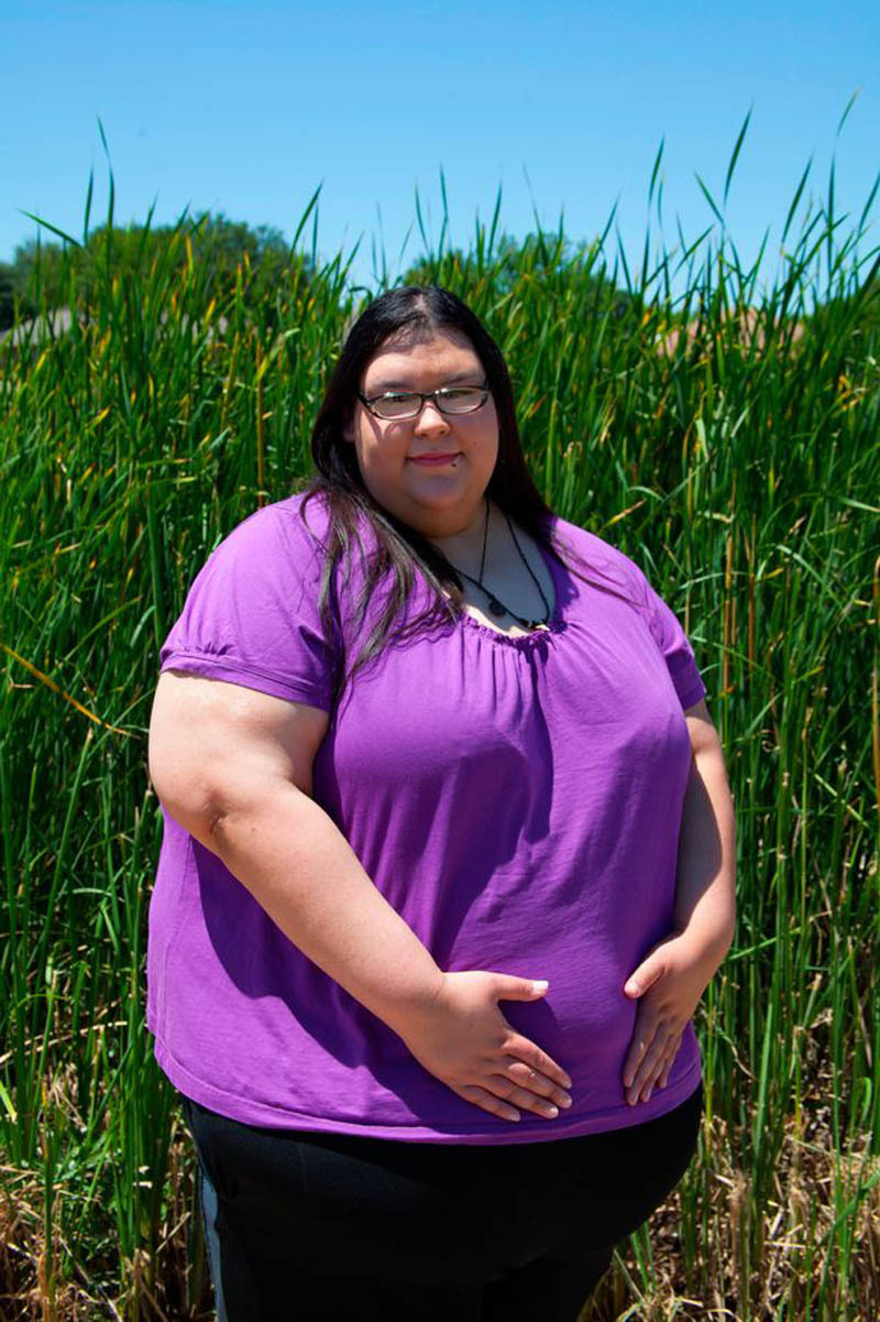 béo phì, giảm cân