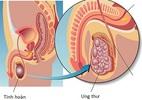 Ung thư tinh hoàn: Biết sớm, chữa nhanh