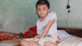 Cậu bé giỏi tiếng Anh với đôi chân 17 lần bị gãy