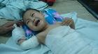 Ngã vào nồi chè nóng, bé trai 14 tháng tuổi bỏng nặng
