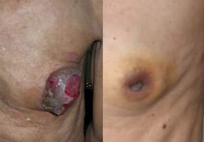 Đàn ông có bị ung thư vú?