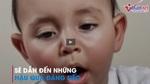Kỹ năng sơ cứu khi trẻ vơ nắm mọi vật cho vào miệng