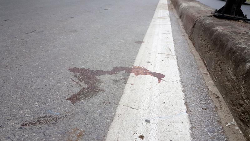 Đi sát dải phân cách, thanh niên bị xe buýt 'ép' trọng thương