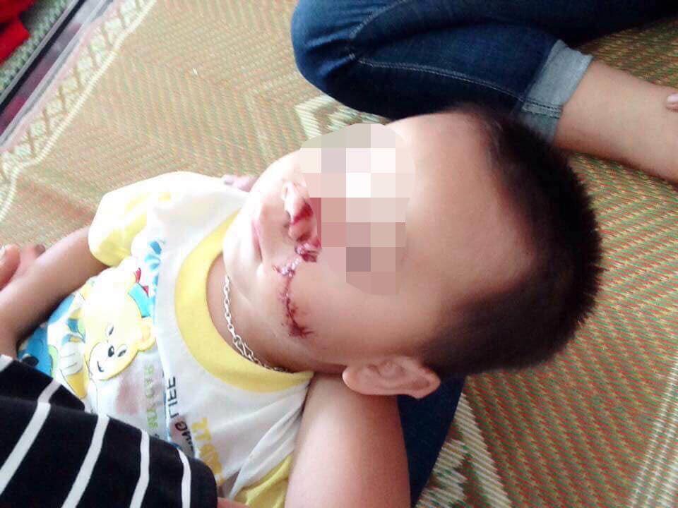 Tuyên Quang: Sự thật bé 2 tuổi bị bố chém vào mặt