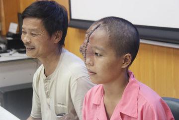 Bệnh viện khước từ cô gái mang khuôn mặt dị dạng