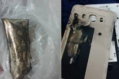 Galaxy J7 phát nổ trên tay bé 4 tuổi