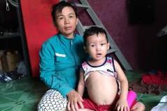 Mẹ nghèo cơ cực chăm đàn con bệnh gan di truyền