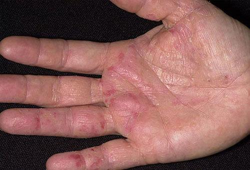 Bệnh chàm tổ đỉa nguyên nhân và cách điều trị