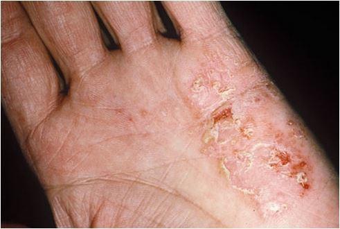 Bệnh chàm khô nguyên nhân và cách điều trị