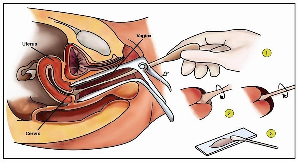 Các phương pháp điều trị ung thư cổ tử cung hiệu quả nhất