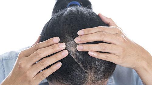 Phòng ngừa tóc bạc sớm như thế nào?