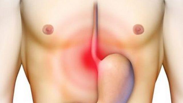 Ung thư dạ dày là bệnh gì?