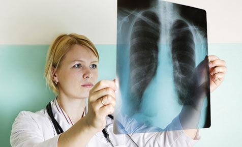 bệnh lao,nguyên nhân gây bệnh lao,điều trị bệnh lao