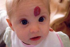 U máu ở trẻ em có nguy hiểm không?