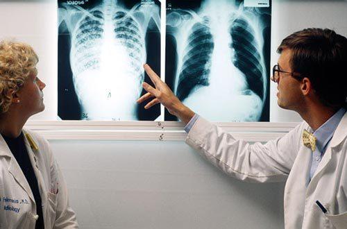 4 nguyên tắc để chữa khỏi bệnh lao