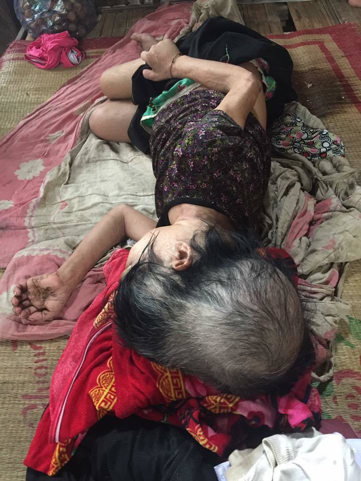 Chuyện đời u buồn của người phụ nữ mắc bệnh đầu dài