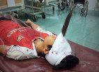 Bé 12 tuổi bị dao cắm giữa trán, chấn thương sọ não