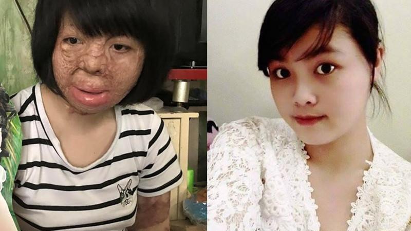 Hoa hậu phụ nữ Việt Mam 2017, Nguyễn Thùy Dung