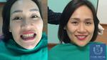 Thẩm mỹ răng- Nhận diện rõ các nguy cơ biến chứng