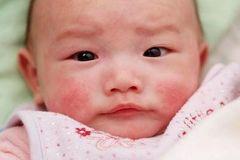 Cách phòng bệnh sởi hiệu quả cho bé