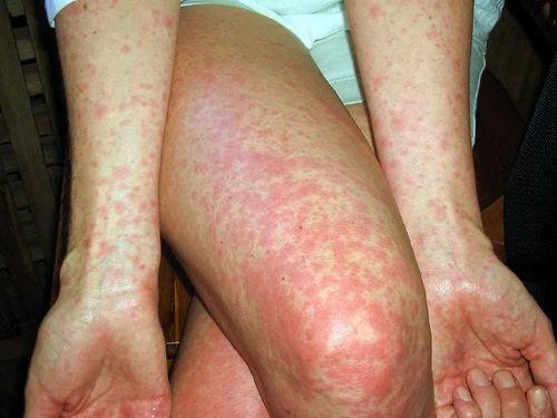 Điều trị bệnh sởi,Sởi,Dịch bệnh,Bệnh truyền nhiễm