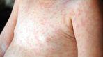 Bệnh sởi là gì, triệu chứng và cách điều trị bệnh