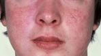 Bệnh lupus ban đỏ được hiểu như thế nào?