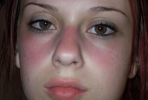 Dấu hiệu nào cho thấy bạn đã mắc bệnh lupus ban đỏ