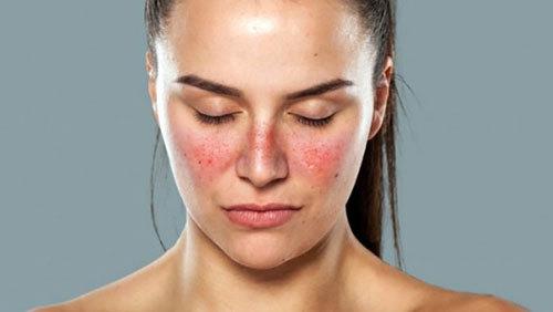 Cách phòng chống bệnh lupus ban đỏ hiệu quả