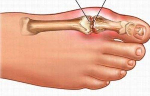 Nguyên nhân và triệu chứng của bệnh Gút