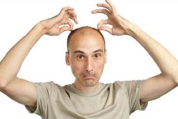Rụng tóc ở nam giới: những vấn đề đáng chú ý