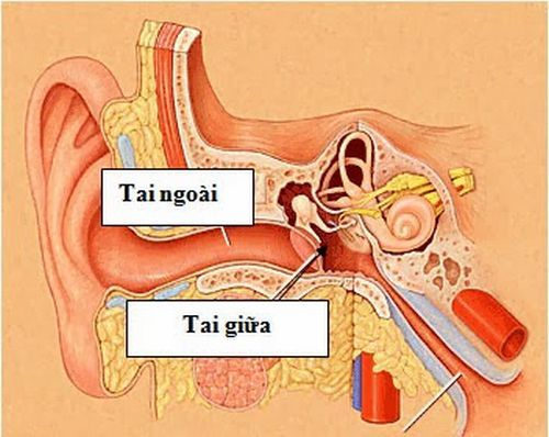 Viêm tai giữa,Nguyên nhân bệnh viêm tai giữa,Điều trị bệnh viêm tai giữa