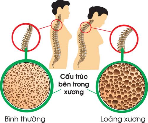 Bệnh loãng xương do những nguyên nhân nào gây nên?