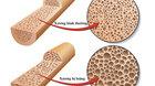 Bệnh loãng xương được hiểu như thế nào?